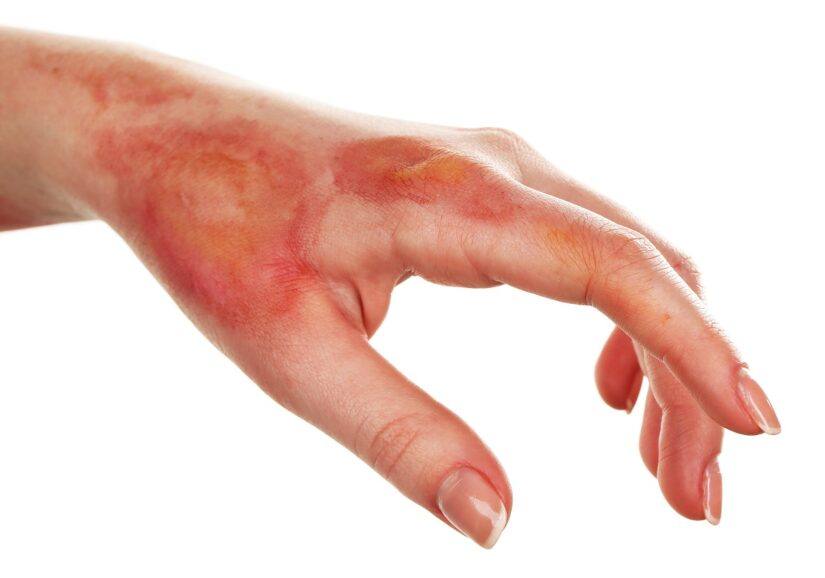 Most Surgeons do not Immobilize Extremities After Split-Thickness Grafting for Burn Wounds