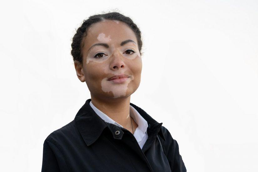 Early Initiation of Vitiligo Treatment Promotes Better Treatment Response