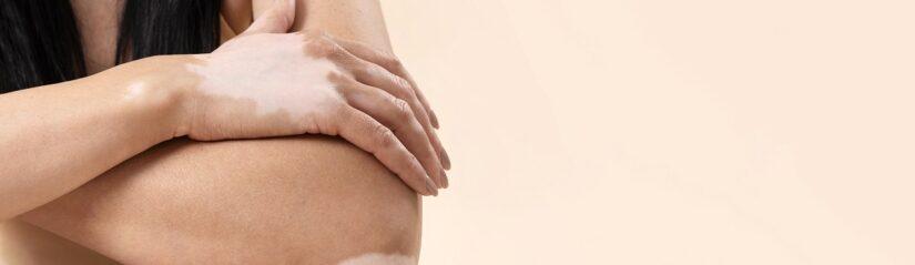 Melanocyte-Keratinocyte Transplantation (MKTP) is an Efficient Treatment Method for Stable Vitiligo