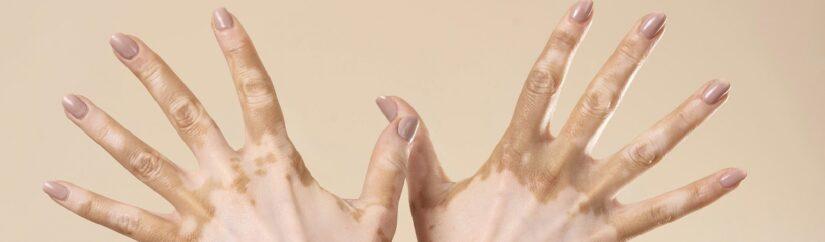 Traditional Medicine Formula Effective in Experimental Vitiligo Models