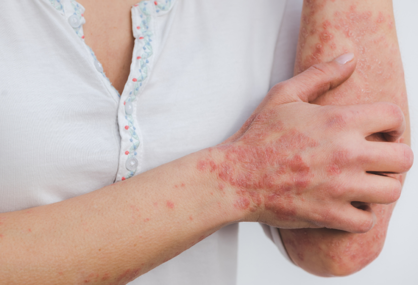 Fixed-Dose Combination of Calcipotriol and Betamethasone is Effective in Patients with Psoriasis Vulgaris