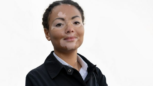 A Beautiful Young Girl Of African Ethnicity With Vitiligo Isolat