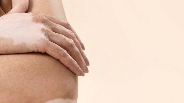 efficient treatment method for Stable Vitiligo issar pharma