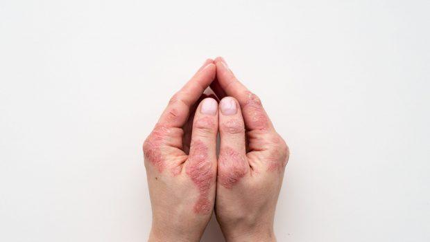 psoriasis-skin-closeup-rash-scaling-patient-s-skin(1)