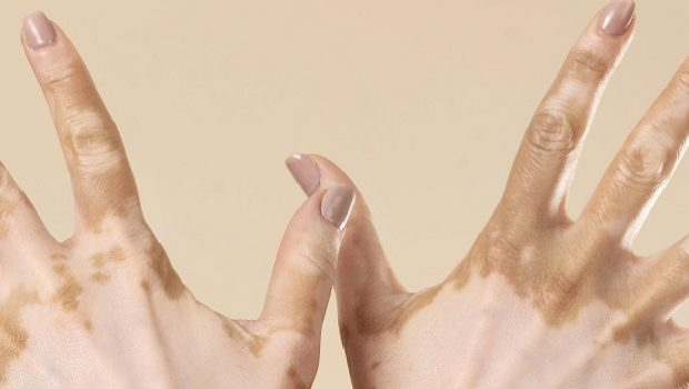 traditional medicine formula for vitiligo issar pharma