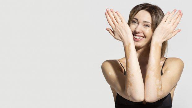 unique-young-woman-with-vitiligo-skin